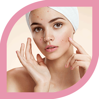 Best Acne Treatment Clinic in Bangalore