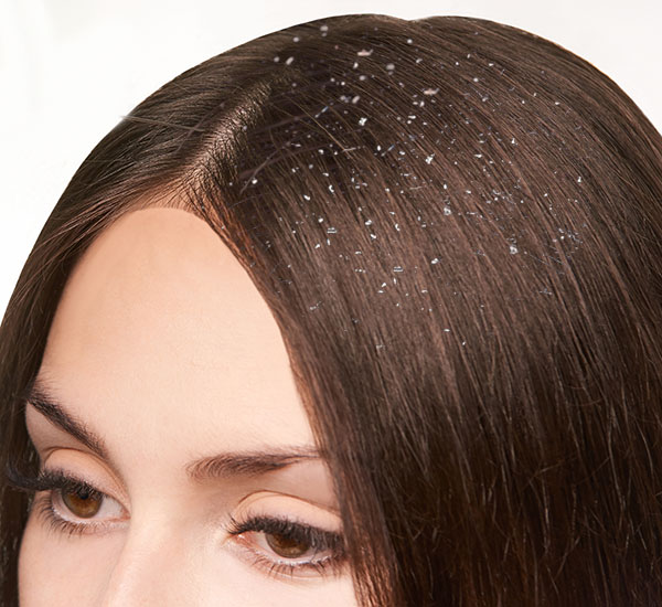 Best Dandruff Treatment Clinic in Bangalore