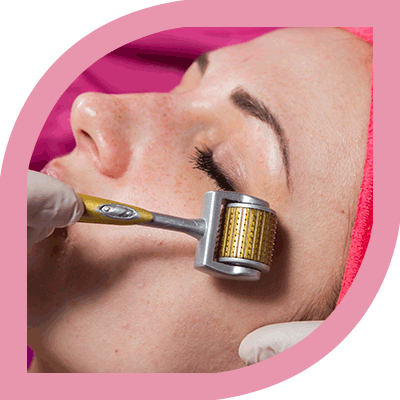 Best Dermaroller Treatment in Bangalore