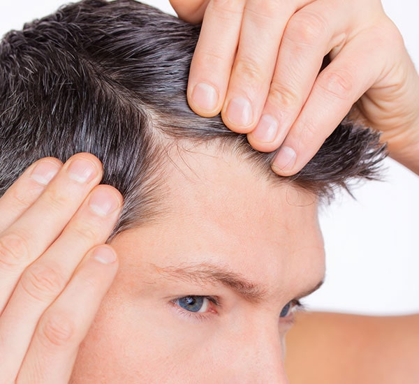 Best Hair Treatment Center in Bangalore