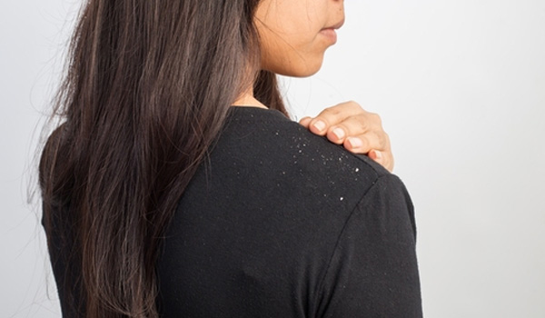 Effective Solutions For Severe Dandruff