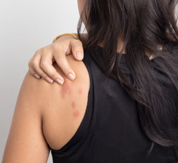 Best psoriasis Treatment in Bangalore